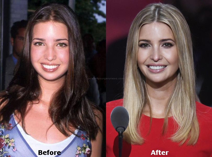 ivanka-trump-plastic-surgery-before-after